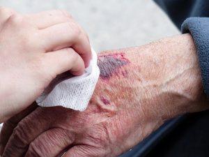 טיפול בפצעים קשיי ריפוי ופצעי לחץ